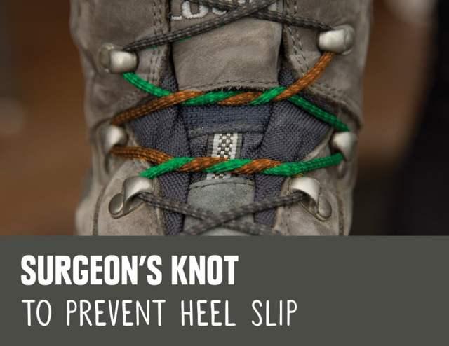 surgeons_knot_lacing_arrangement.jpg